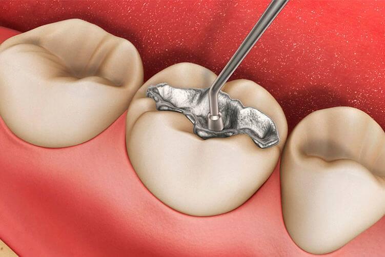 Clinica Dental Proboca Canarias (3)